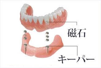 磁性アタッチメント義歯加工