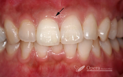 失活歯ホワイトニング