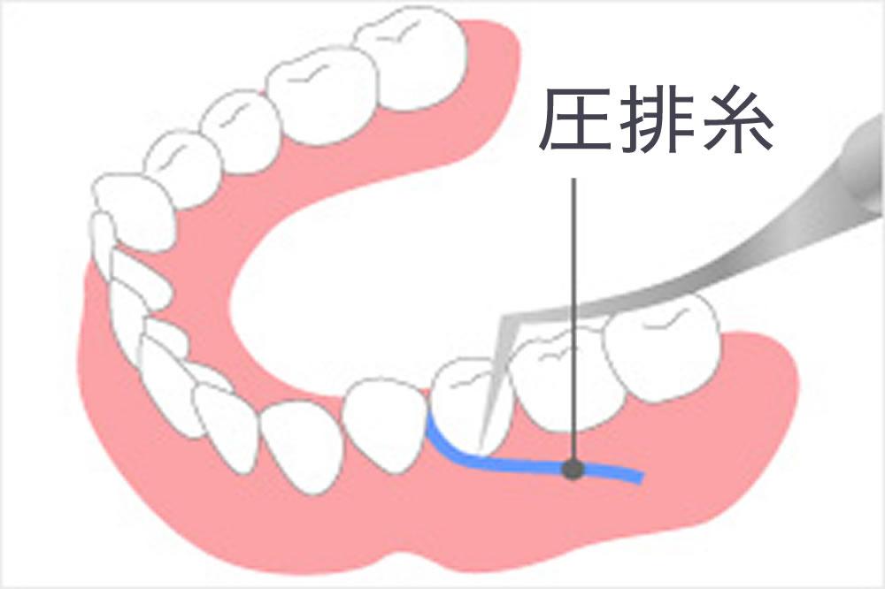 歯肉圧排で良適合の実現