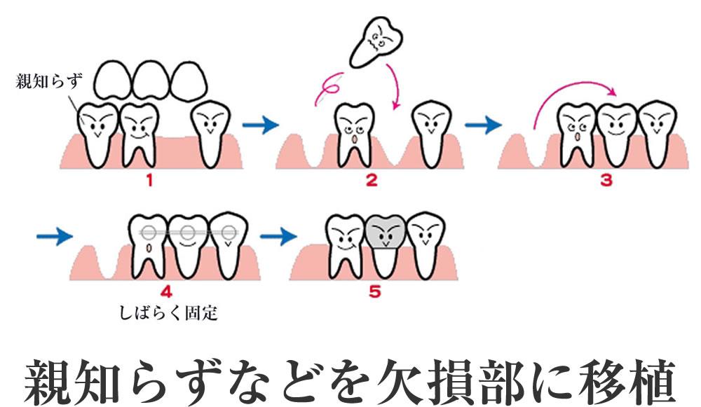 歯の移植、再植