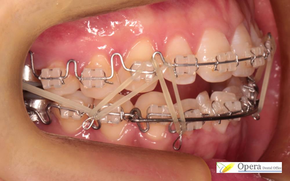 歯を抜かない小児矯正