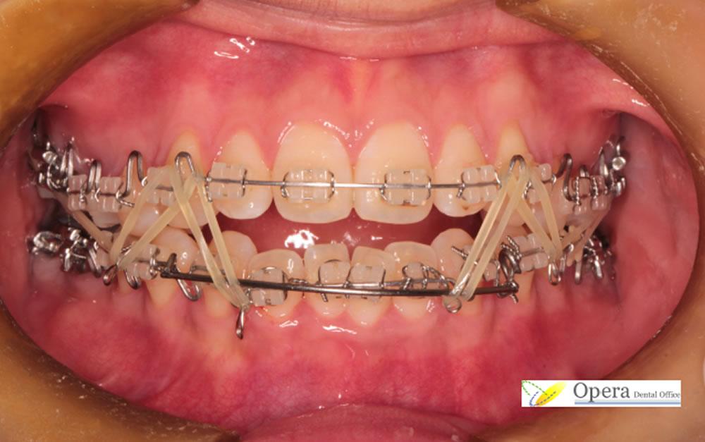 歯を抜かない子どもの歯列矯正
