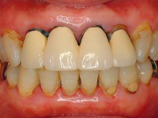 漏 歯槽 治療 膿 歯槽膿漏の臭いはなぜ?簡易チェック&臭いの原因・治療法も