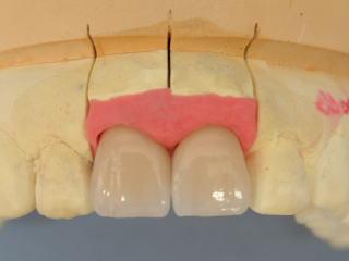 白い歯の被せ物