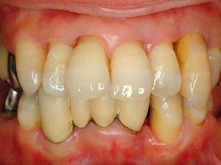 歯茎 から 血 が 出る