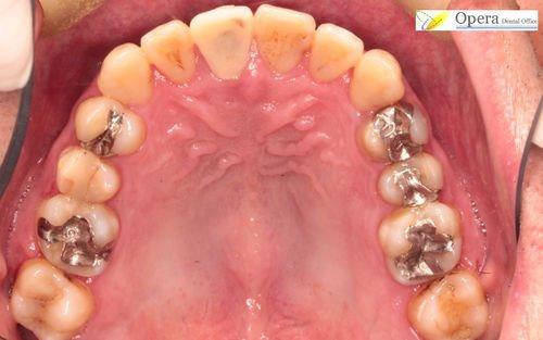 歯を守る矯正