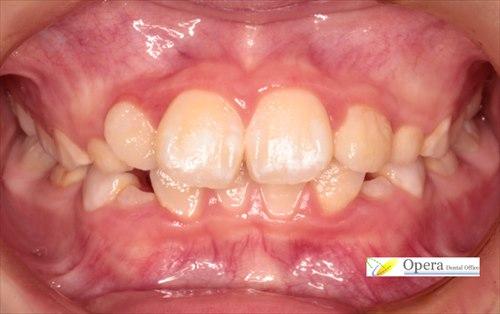 小学生の歯科矯正