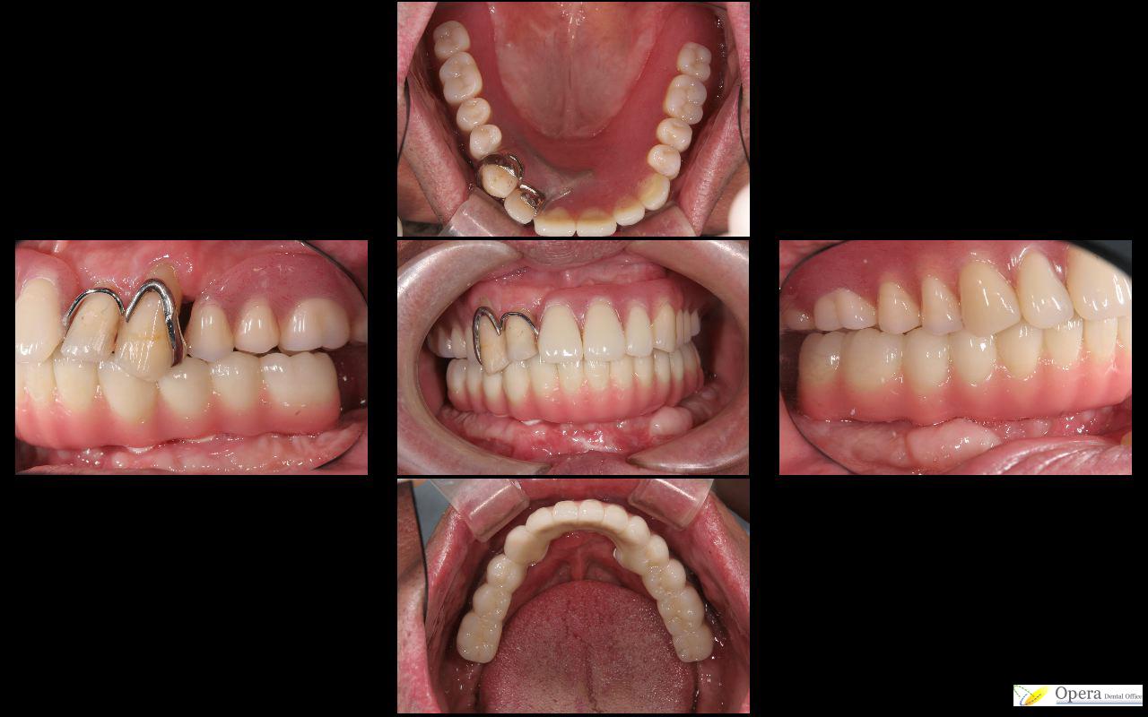 入れ歯治療後
