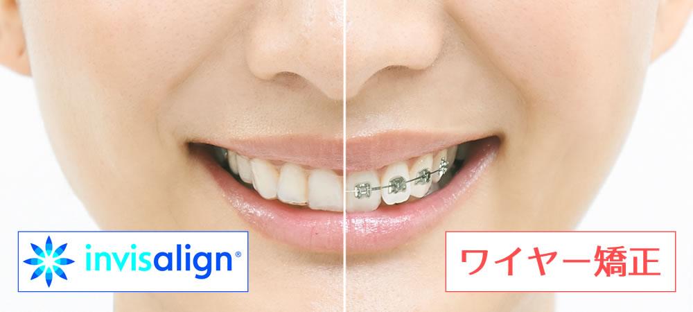 インビザライン igo