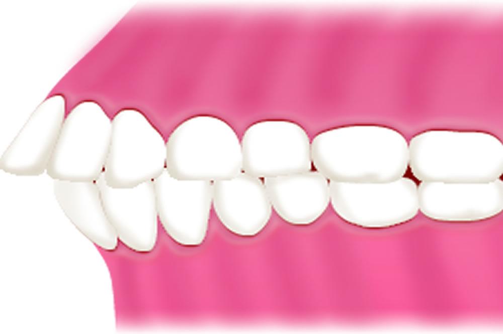 軽度の出っ歯(上顎前突)