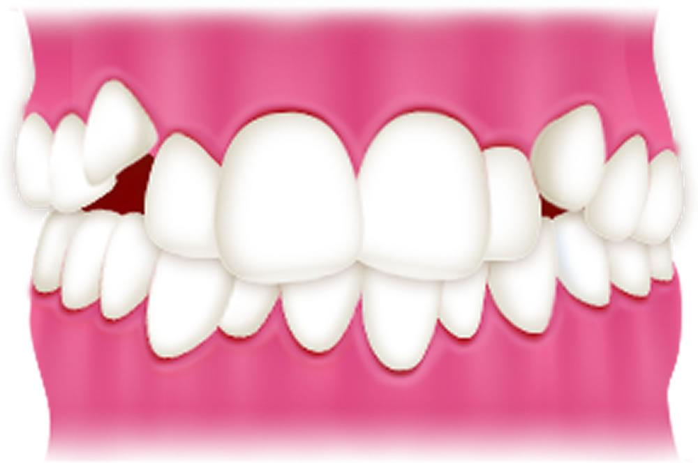 軽度の叢生(八重歯など)