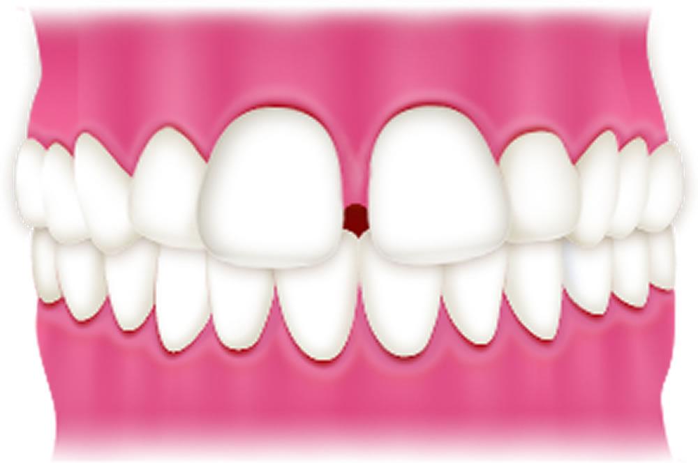 軽度のすきっ歯(空隙歯列)