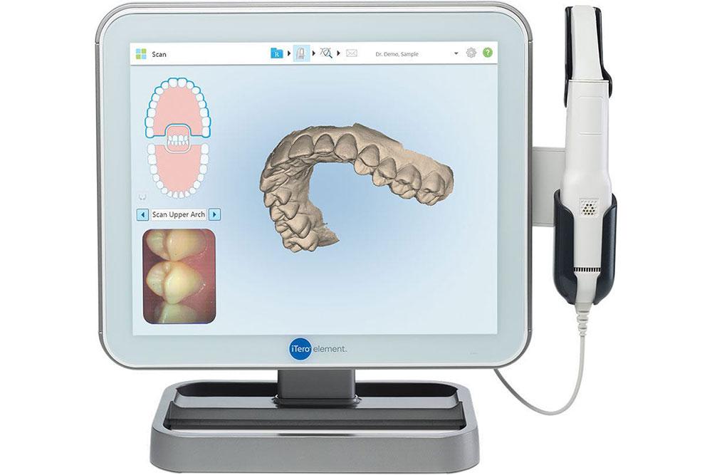 iTero簡易診断